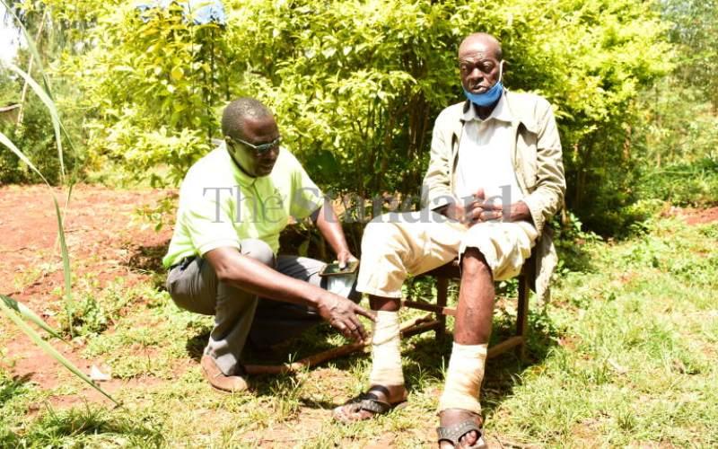 Strange 'leg disease' leaves villagers in pain, distress