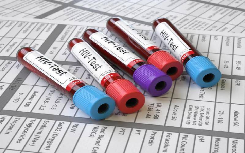 Two women and a HIV test gone awry