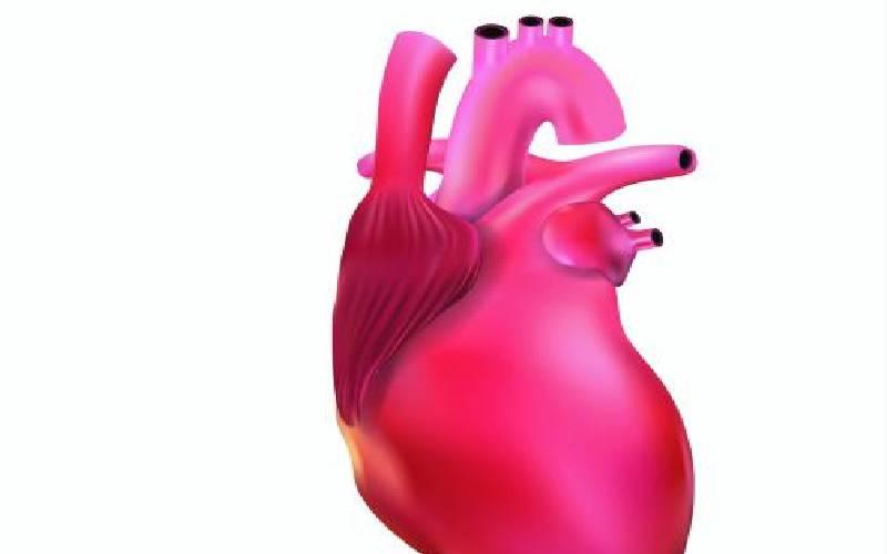 Widowmaker: the deadliest heart attack