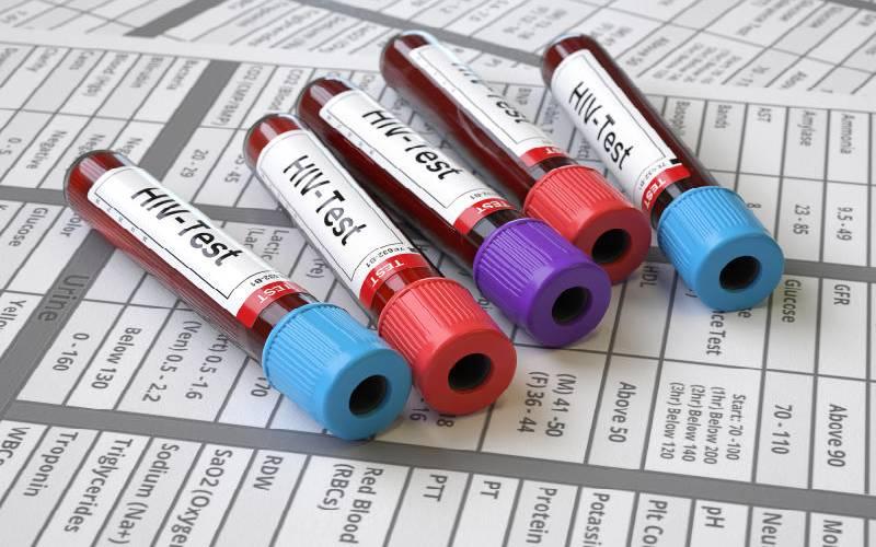 NGOs protest America plan to slash HIV funding again