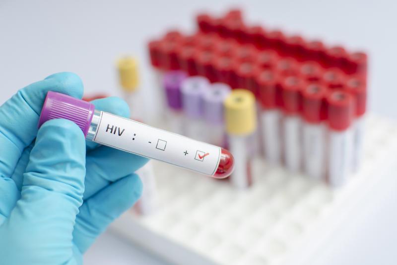 More turn to HIV self-testing kits, says Nascop data
