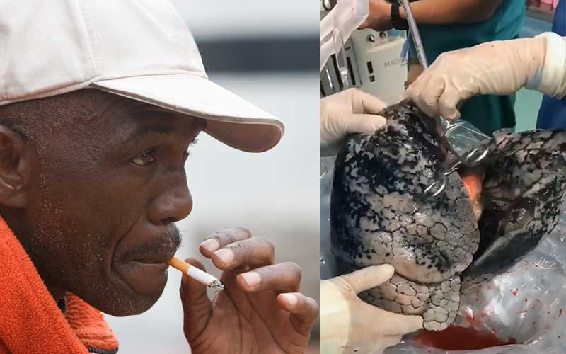 Horrific: Doctors share photos of chain smoker's blackened lungs