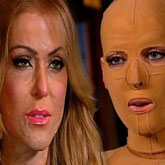 Woman set on fire by jealous love rival reveals astonishing transformation