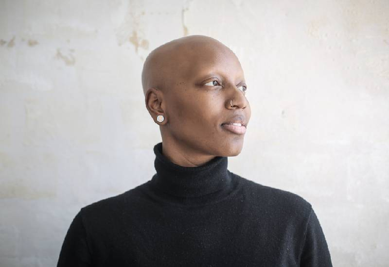Hair loss: Why you need to visit a gynaecologist if young and have alopecia
