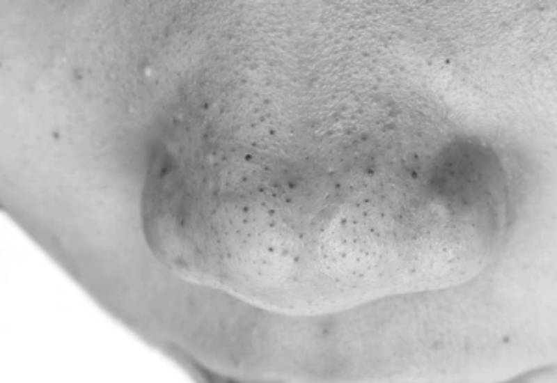 Quick tips on how to deal with blackheads