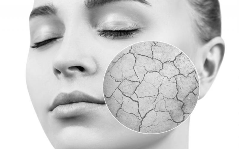 Eight ways to rehydrate dry skin naturally