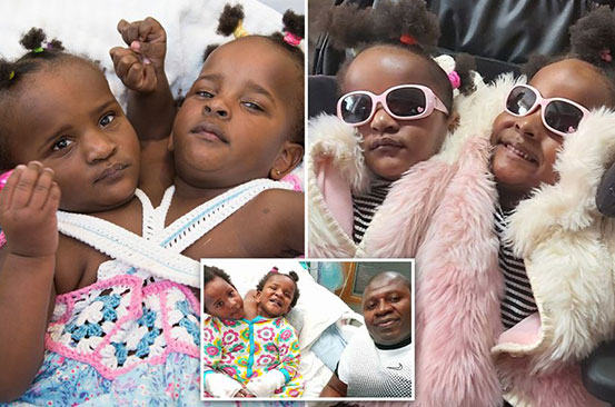 Conjoined twins not expected to live now learning to walk and thriving at school