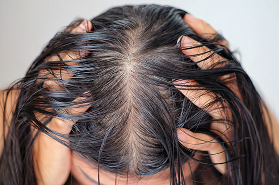 Seven kitchen ingredients that can help with oily hair
