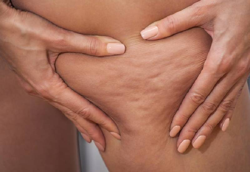 Six foods that can you help fight cellulite