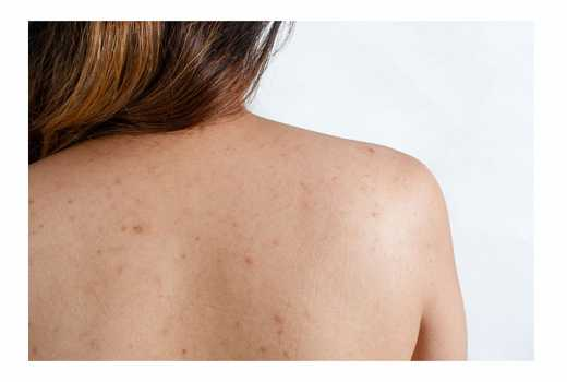 Six Ways To Get Rid Of Shoulder Acne Eve Woman