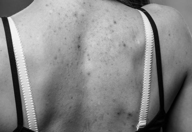 How to banish back acne forever