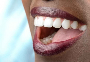 How to whiten your teeth naturally with oil