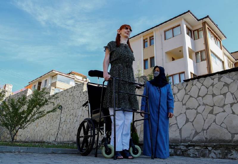 World's tallest woman: Being different is not as bad as you think