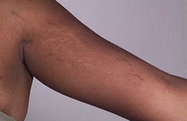 6 Ways to prevent and heal stretch marks