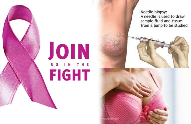 Do you know your breast cancer terms?