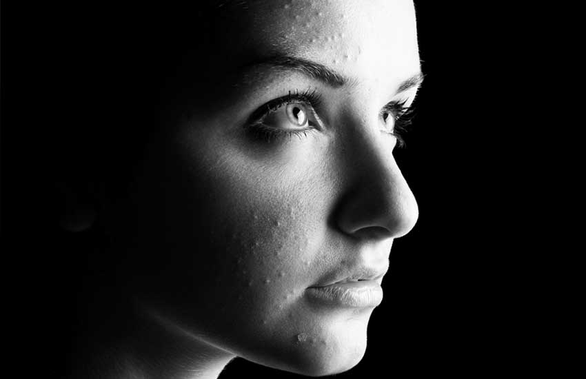 Six facts about acne you should know
