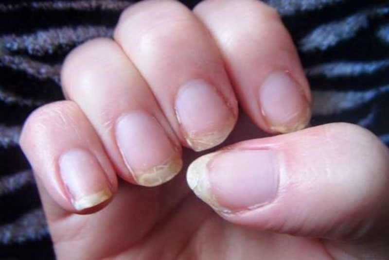 Eight Important Things Your Nails Say About Your Health Eve Woman