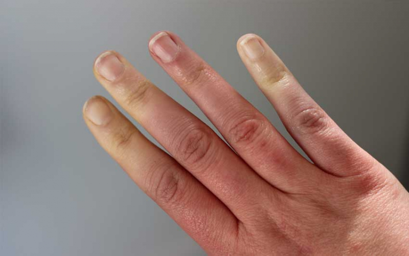 Can Raynaud's syndrome also cause nails to turn black?