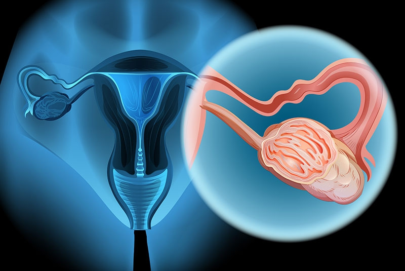 Seven readily available foods that help prevent ovarian cancer