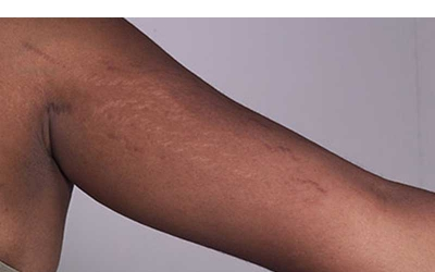 Preventing and healing stretch marks