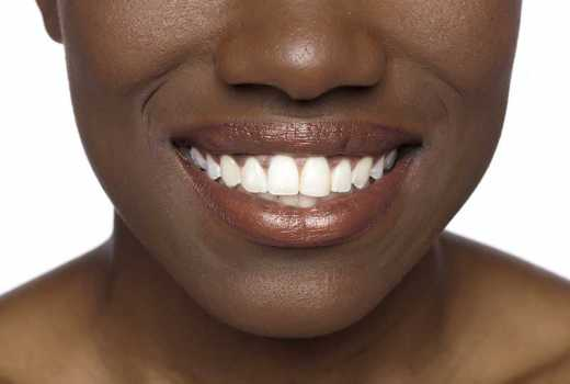 How achieve sparkling white teeth naturally with oil