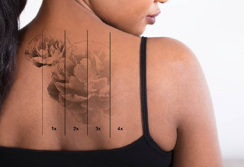What you need to consider before getting that tattoo