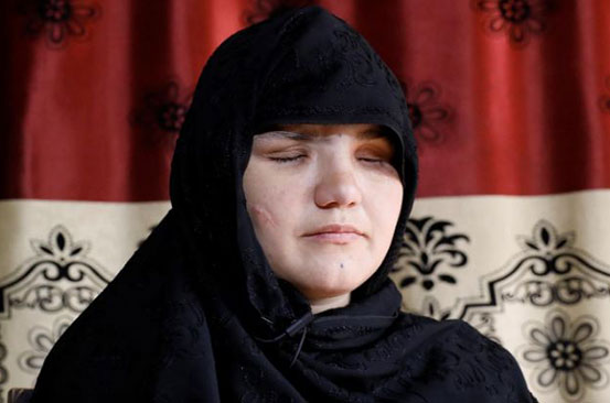 Afghan woman shot, blinded for getting a job