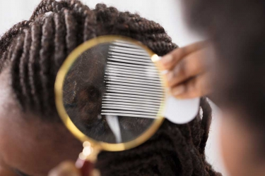 Do it yourself: 9 natural effective home remedies for dandruff and hair itch