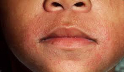 How to beat the itch and scratch cycle of eczema