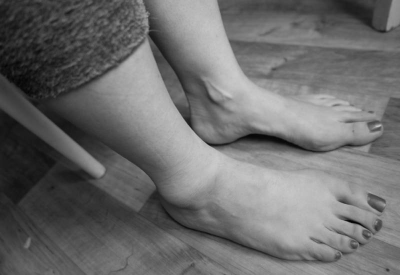 Nine home remedies for swollen feet during pregnancy