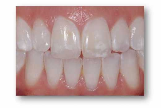 Five natural remedies to get rid of white spots on your teeth