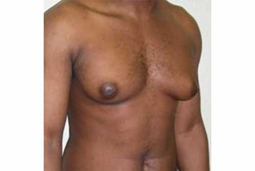 Surprising causes of man boobs that every man needs to know