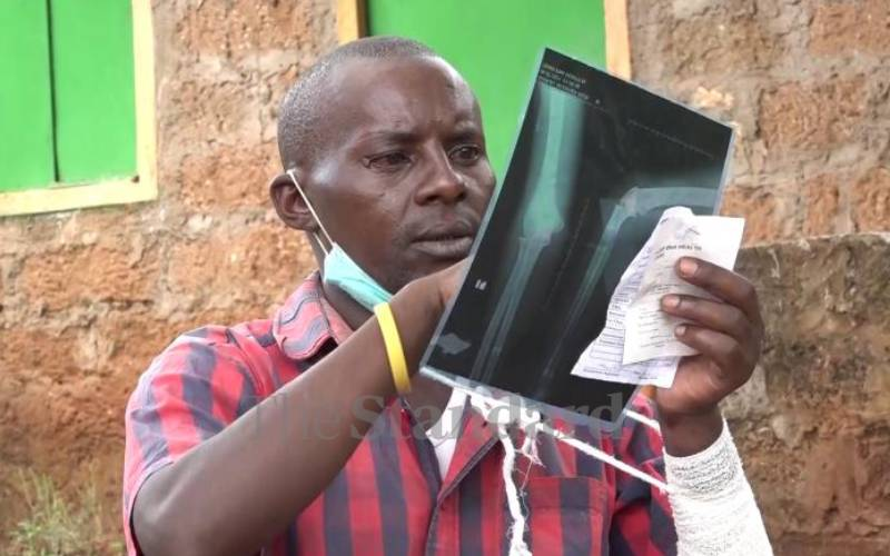 Rights group decries police brutality in Embu