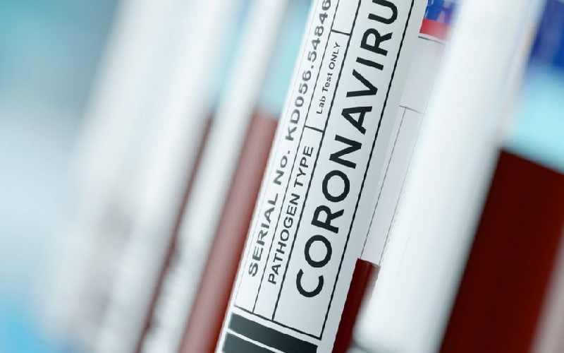 New drug 'lowers virus death risk'