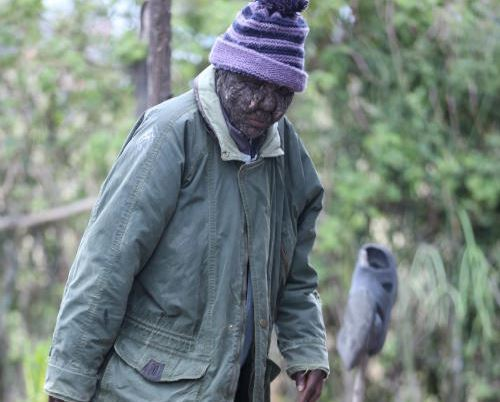 Onesmas Mwanzi, 44, suffers from darier. The condition ...