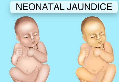 Infant jaundice: The harmless condition that can turn fatal