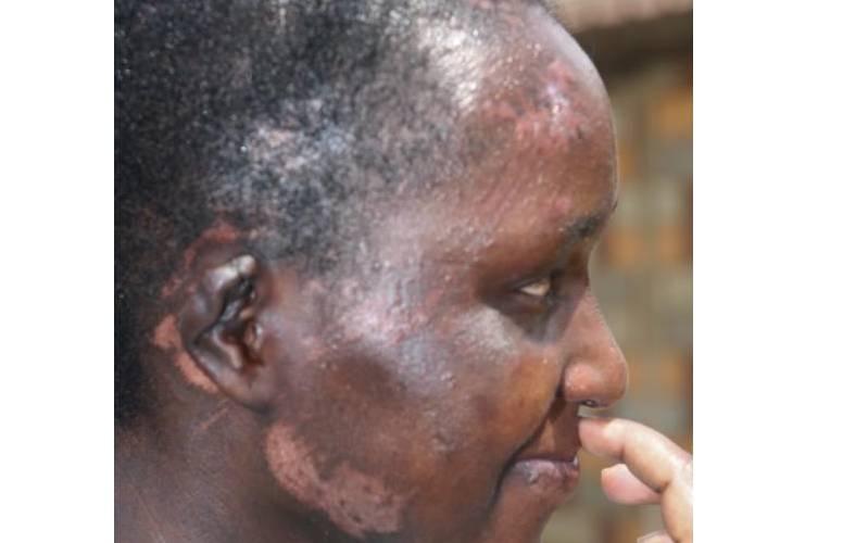 'I survived two days under rubble of a landslide'