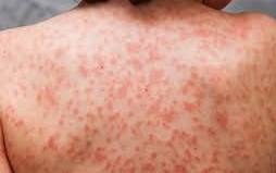 Mystery as Kawasaki-like illness linked to coronavirus now affecting people in 20s