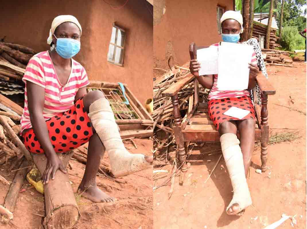 'Police broke my leg for not wearing face mask' – Vihiga woman