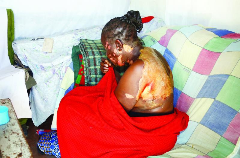 Woman nursing severe burns after hot porridge attack
