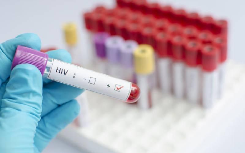 More men turn to HIV self-testing kits, says Nascop data