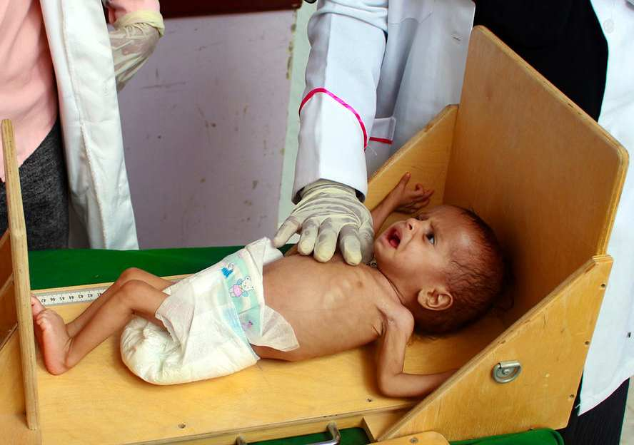 UN warns of alarming rise of hunger in war-torn Yemen