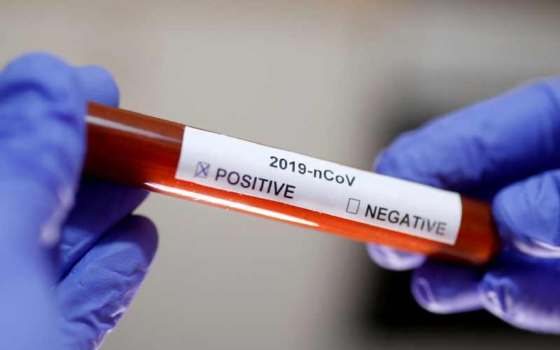 Covid-19 anxiety could be leading to rise in body image issues, study warns