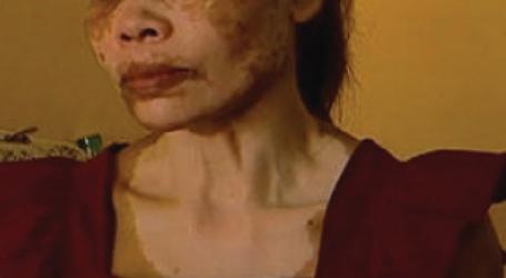 Kenya Bureau of Standards raises alarm over dangerous skin lightening creams flooding the market