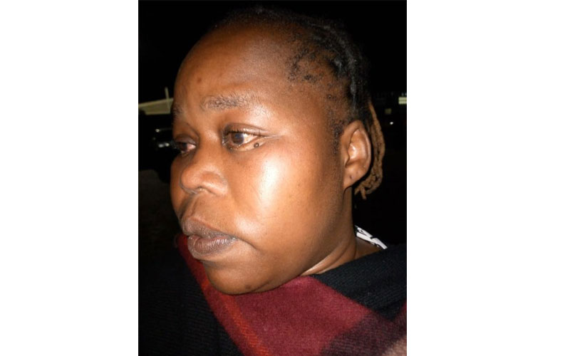 Nakuru woman beaten for refusing to pay police bribe