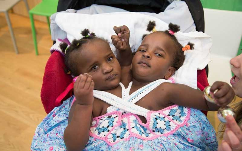 PHOTOS: Conjoined twins not expected to live learning to walk, thriving at school