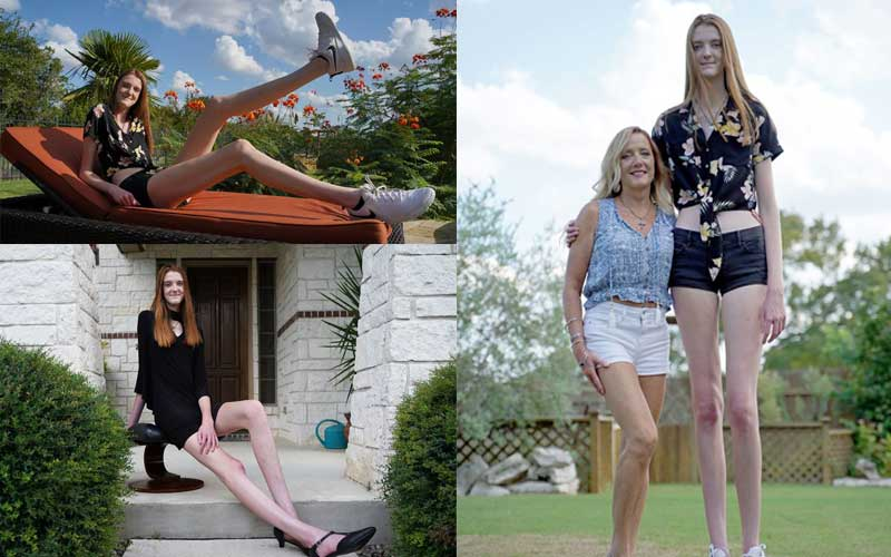 Teenager breaks double world records for longest legs