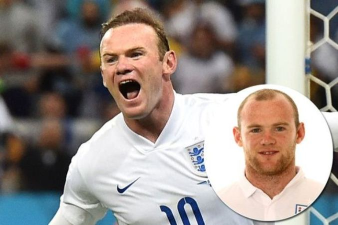 World Cup players who need to do a Wayne Rooney and get a hair transplant
