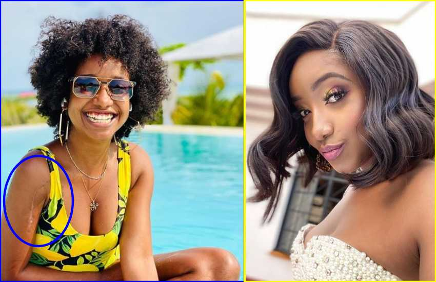 Anita Nderu opens up about seizures, says she broke her humerus in four places