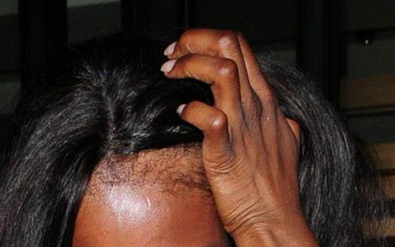 Dirty wigs singled out as major contributing factor to low grades